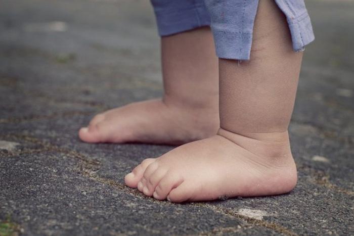 صافی کف پای نوزادان و کودکان