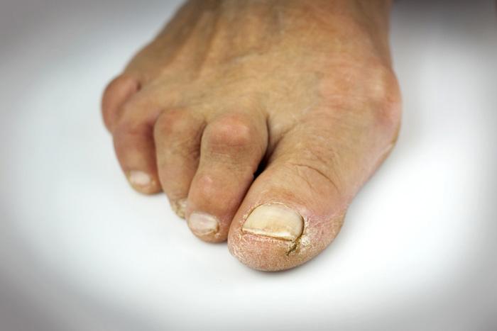 با ناهنجاری انگشت چنگالی پا آشنا شوید!
