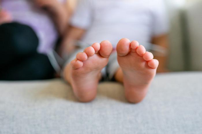 انحراف کف پا در کودکان، علل و درمان