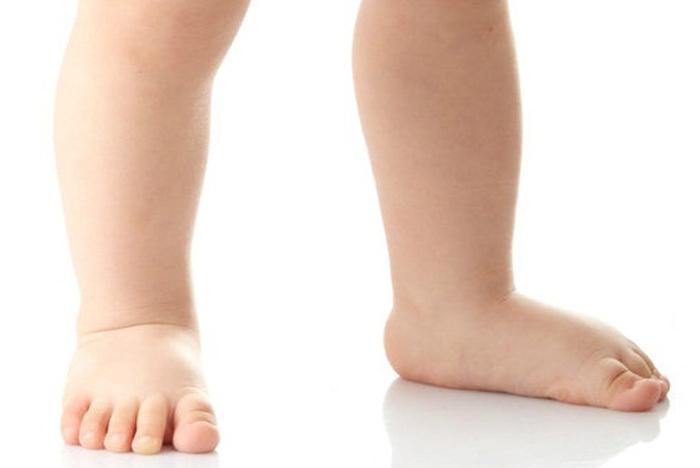 انحراف کف پا در کودکان