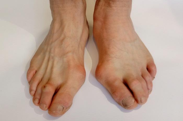 انگشت چکشی پا چه نوع اختلالی است؟