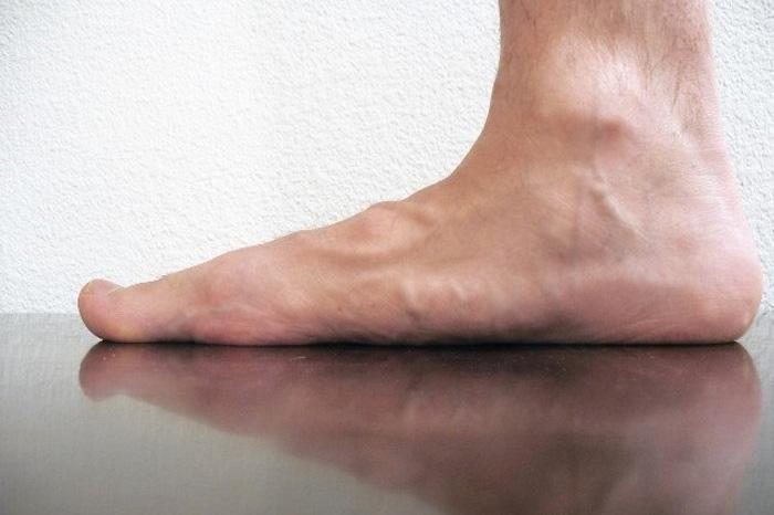 صافی کف پا؛ علل، نشانه ها و درمان