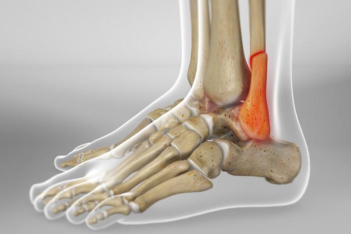 هرآنچه از شکستگی استخوان پا باید بدانید!