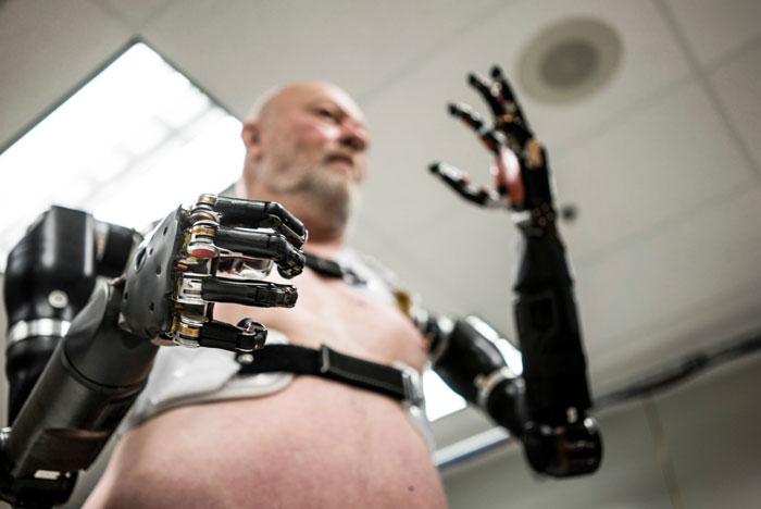 اندام های مصنوعی با موتور الکتریکی چگونه کار می کنند؟