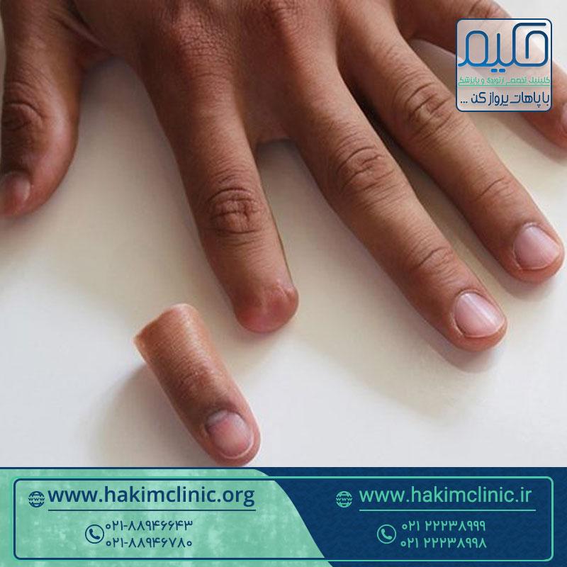 انگشت مصنوعی چیست و چگونه کار می کند؟