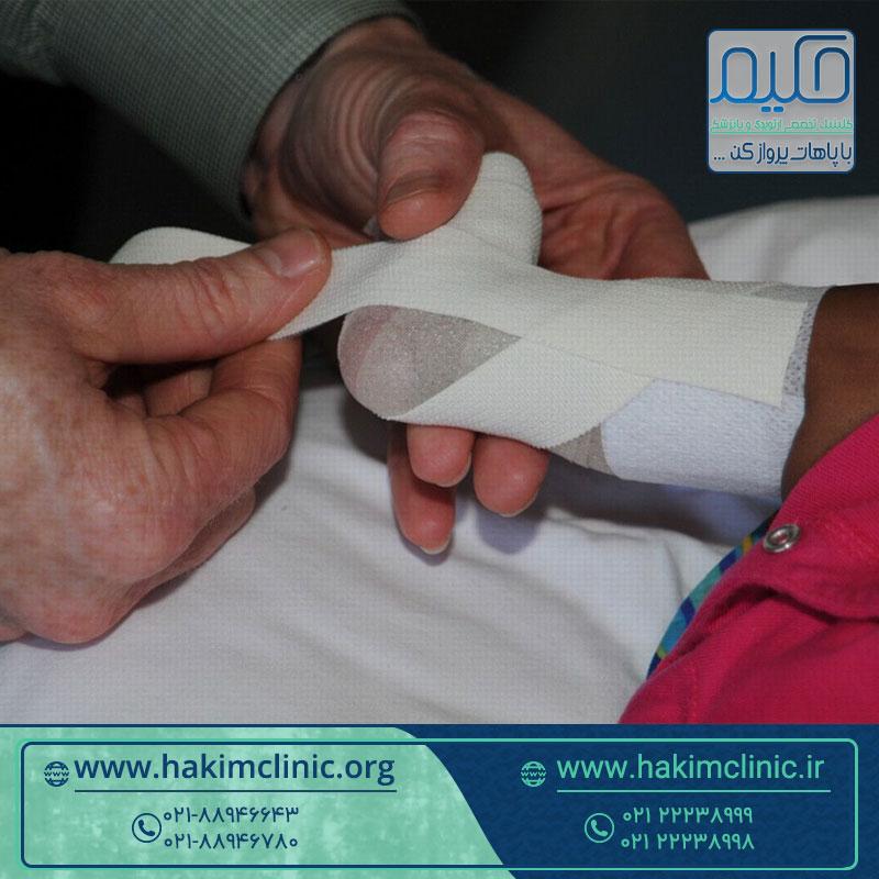 روش های نوین درمان پاچنبری را بشناسید